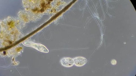 Full HD. Motion of single-celled animals (infusoria) under microscope
