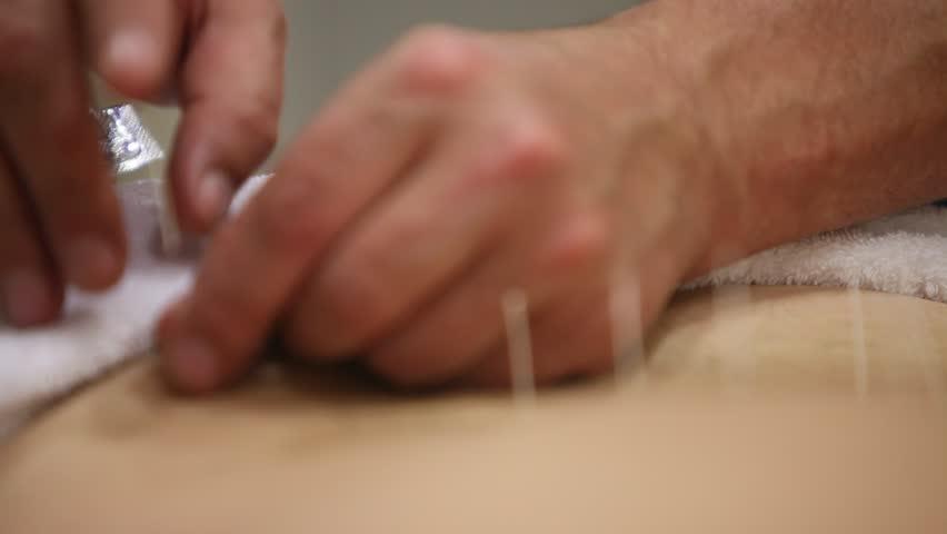 acupuncture medical procedure