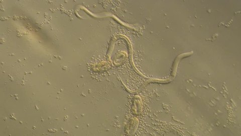 Caenorhabditis elegans, a free-living transparent nematode (roundworm), about 1 mm in length.