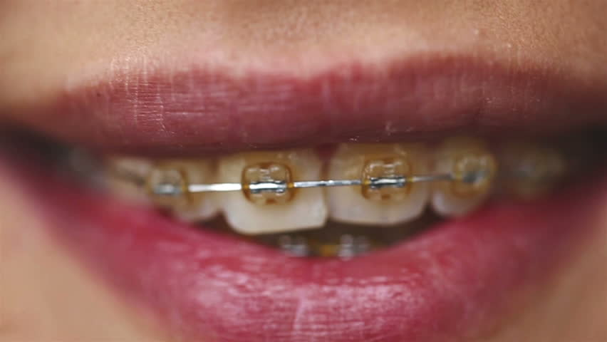 SLOW MOTION: Close up of a beautiful female lips. Girl showing braces on teeth. SESSION KEYWORD: uzhursky004