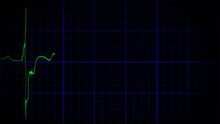 Animation of an EKG monitor heartbeat, more true-to-life: the line is irregular. An Electrocardiogram (or ECG) shows a pulsating heart beat. Includes audio track.
