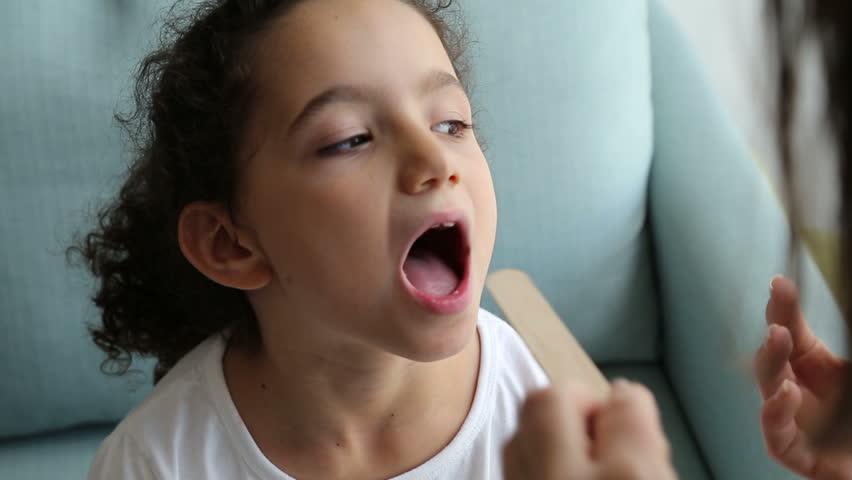 Child throat swab test to detect streptococcus