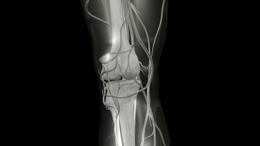 HD Knee X-ray