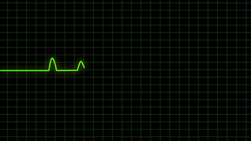 Ekg Heart Monitor Goes Flatline