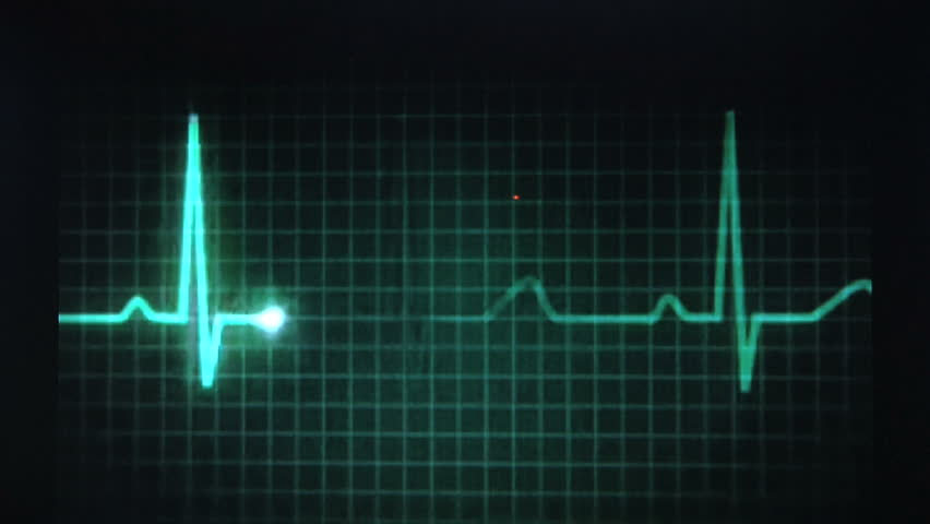 Animated EKG Display